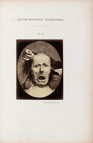 View 1. Thumbnail of Lot 100. Mécanisme de la physionomie humaine. 1862. Album de 72 photographies.