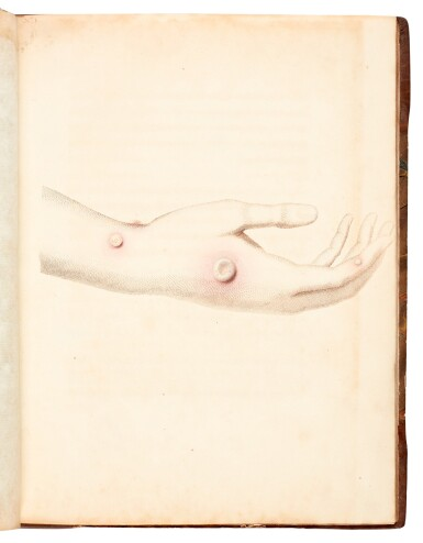 View 2. Thumbnail of Lot 28. Jenner   An inquiry into the causes and effects of the variolae vaccinae, London, 1800, half calf.